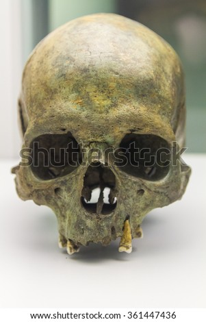 details of a human skull - stock photo