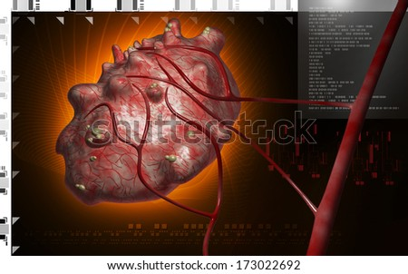 Digital illustration of cyst in colour  background  - stock photo