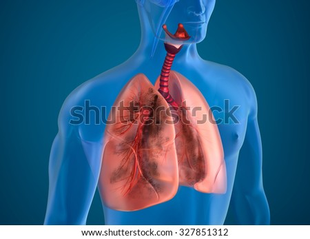 Diseased lungs x-ray view - stock photo