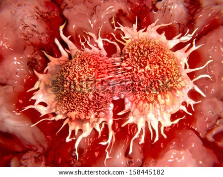 Dividing cancer cells