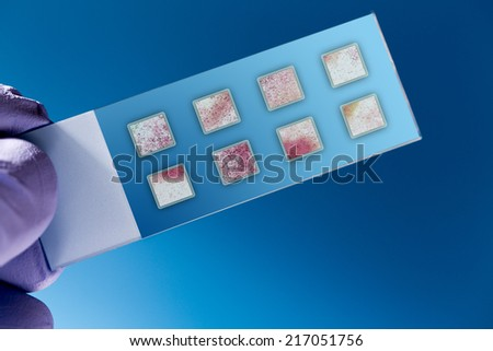 DNA microarray, DNA chip or biochip,  array of nano DNA spots attached to a glass surface to measure  levels of large numbers of genes - stock photo