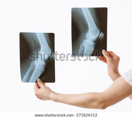 Doctor comparing X-rays with each other, white background