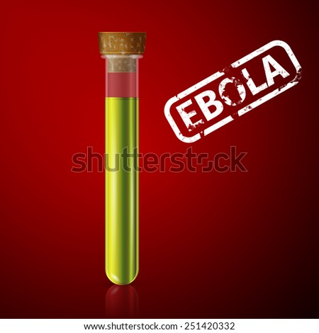 doctor examines a tube with blood infected with ebola virus - stock photo