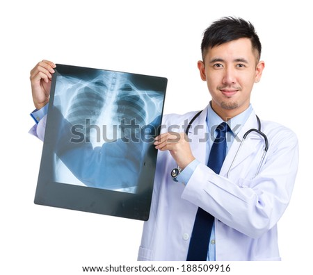 Doctor holding X-ray