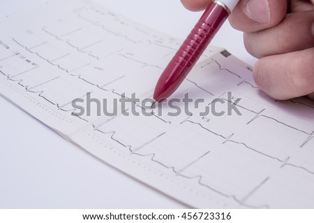 Doctor in the office indicates the patient using a ballpoint pen on the segment with the pathology, detected on electrocardiogram (ECG, EKG), which lies on a white medical table closeup front view - stock photo