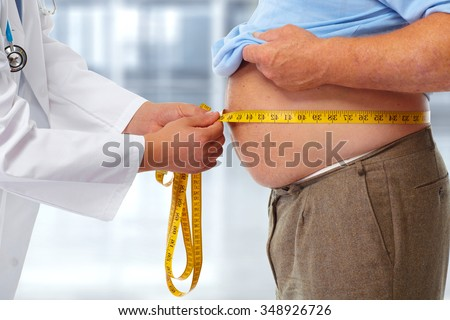 Doctor measuring obese man waist body fat. Obesity and weight loss. - stock photo