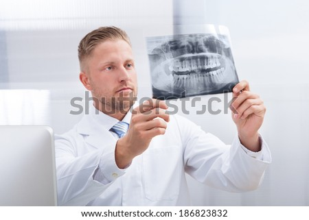 Doctor studying an x-ray film holding it up to the light as he makes his diagnosis or checks on the progress of treatment - stock photo