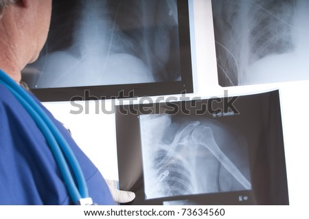 doctor, surgeon or radiologist studying set of x-rays of chest and shoulder