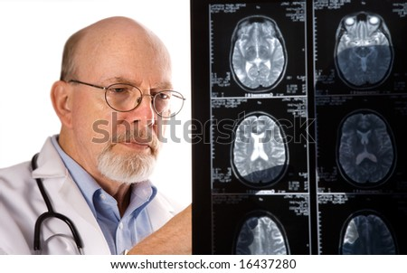Doctor viewing MRI scans - stock photo
