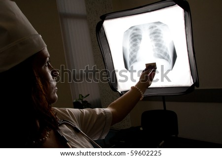 Doctor with chest X-ray isolated - stock photo