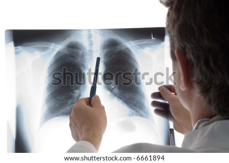 doctor with radiogram - stock photo