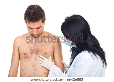 Doctor woman with mask and gloves examine  skin rash to a man with chickenpox isolated on white background - stock photo