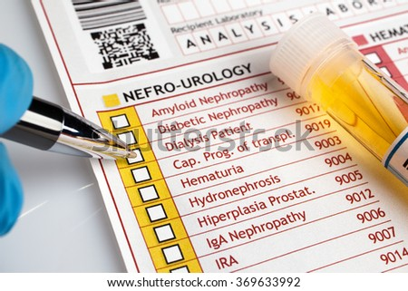 Doctor writing a report of analysis of urine for a patient / physician filling medical form of urianalysis diagnostic - stock photo