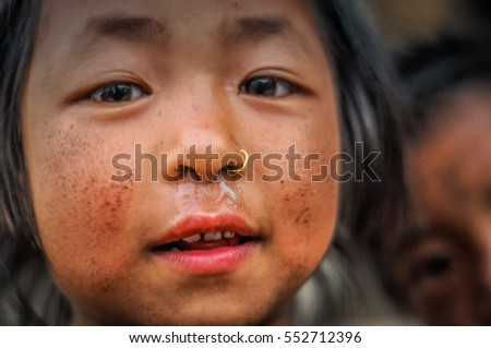 Dolpo, Nepal - circa May 2012: Small brown-eyed girl with piercing in her nose and dirt on cheeks in Dolpo, Nepal. Documentary editorial.