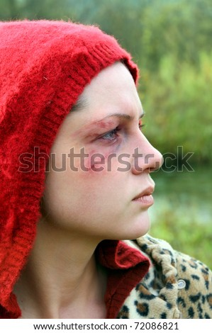 Domestic violence victim, a young  woman abused. - stock photo