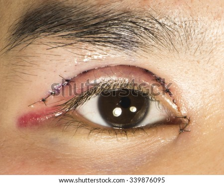 Double eyelid surgery eyes surgery recover stock photo safe to use double eyelid surgery eyes surgery recover period with petroleum gel applied right eye publicscrutiny Gallery