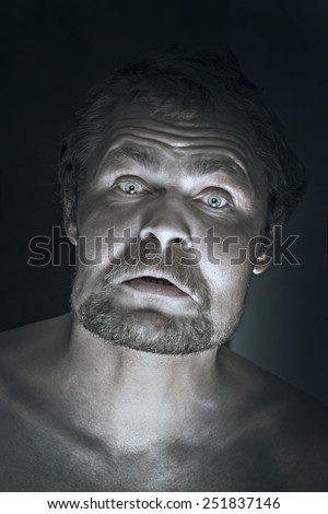 Drunk man sick with a hangover and a swollen face - stock photo