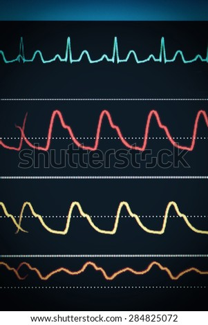 ECG chart on the monitor around the clock surveillance - stock photo