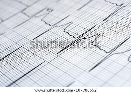 ECG diagram  - stock photo