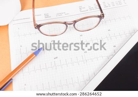 ECG diagram,EKG diagram,medical result - stock photo