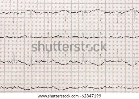 ECG (electrocardiogram) paper - stock photo
