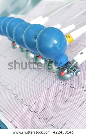 ECG electrodes on the printed graph. - stock photo