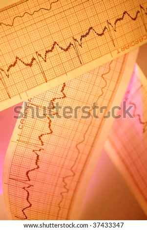 ECG for medical backgrounds - stock photo