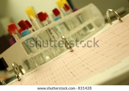ECG Graph - stock photo