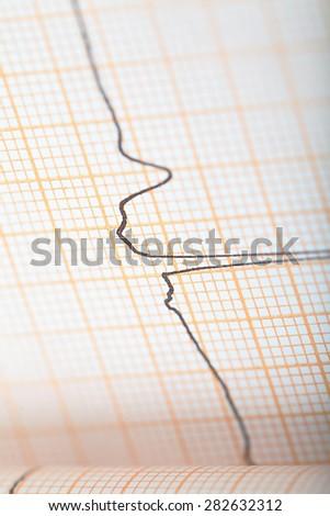 ECG graph as a concept heart conditions diagnosis - stock photo