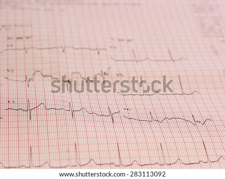 ecg graph, electrocardiogram ekg - stock photo