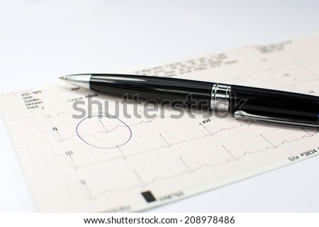 ECG report on table with black pen - stock photo