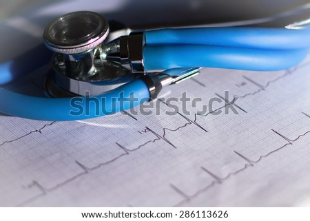 ekg and stethoscope with bright vignetting - stock photo
