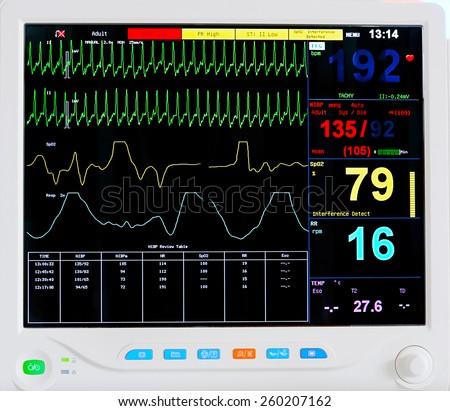 EKG monitor - stock photo