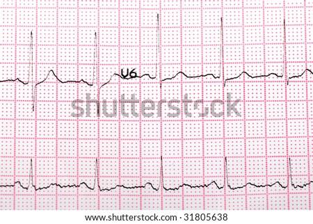 EKG printout - stock photo