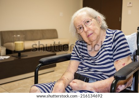 Elderly eighty plus year old handicap woman in a medical office setting. - stock photo