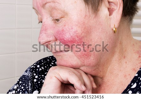 Elderly woman with rosacea, facial skin disorder