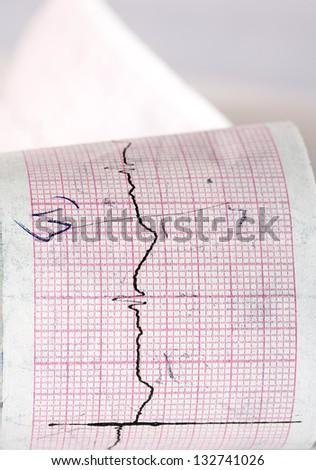Electrocardiogram CTG macro - stock photo
