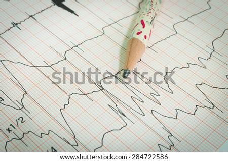 Electrocardiogram graph , ekg heart rhythm, medicine concept - stock photo