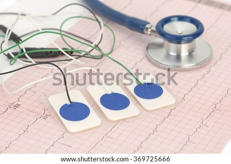 Electrocardiogram leads on electrocardiograph print out. - stock photo