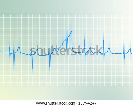 Electrocardiogram of a healthy heart (blue line on soft background) - stock photo