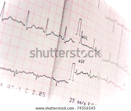 electrocardiogram on white background - stock photo