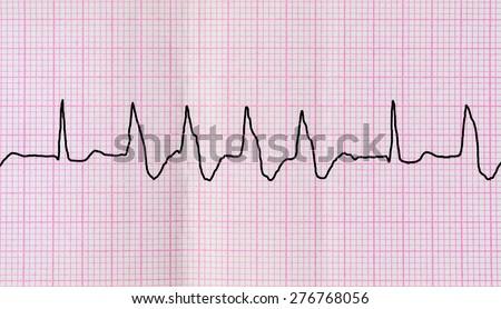 Emergency cardiology fellowship