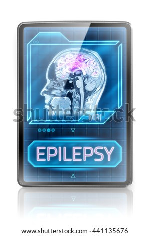 Epileptic brain (3D illustration) - stock photo