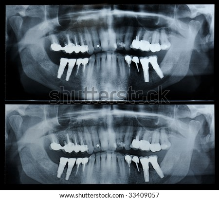 Extra-oral radiographic view : teeth image - stock photo