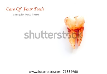 Extraction of tooth - stock photo