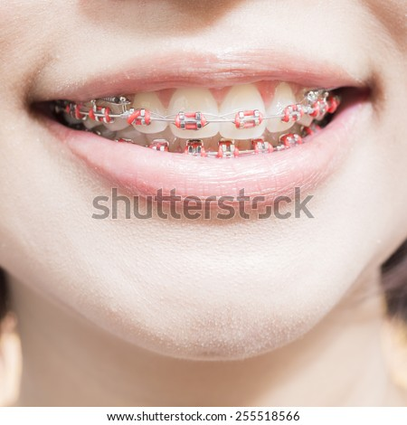 Extreme macro close up of open human mouth showing stainless steel braces,orthodontics - stock photo