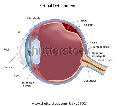 Eye condition: retinal detachment - stock photo