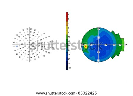 Eye test -Visual Field in Glaucoma - stock photo