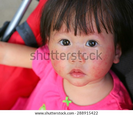 face baby rashes, dermatitis, which is full of it, but still good - stock photo
