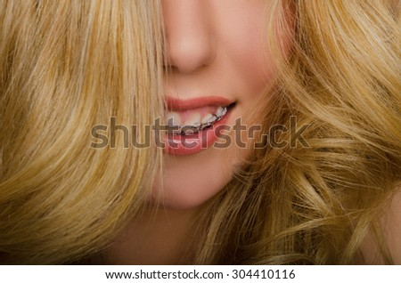 face of beautiful woman with long hair and braces studio shot - stock photo